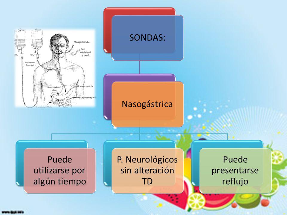 SONDAS:Nasogástrica Puede utilizarse por algún tiempo P.