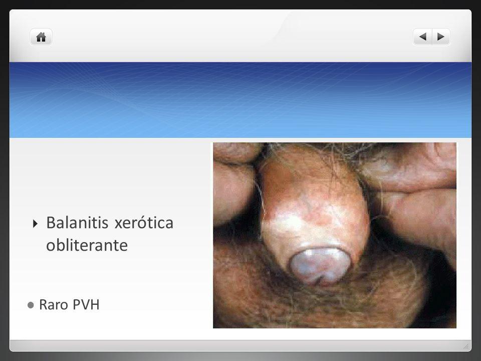 Tumor de Buschke Lowenstein Diagnóstico diferencial Condilomas acuminados Enfermedad de Bowen condilomatosa Balanitis seudoepiteliomatosa por hongos Epiteliomas espinocelulares Carcinomas verrucosos Sífilis Linfogranuloma venereo