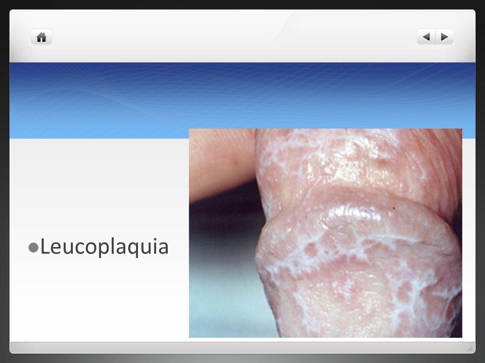 Variedades patológicas Condiloma Acuminado Gigante Tumor de Bushke-Lowenstein Degeneración maligna de un condiloma Inducido por el VPH serotipo 11