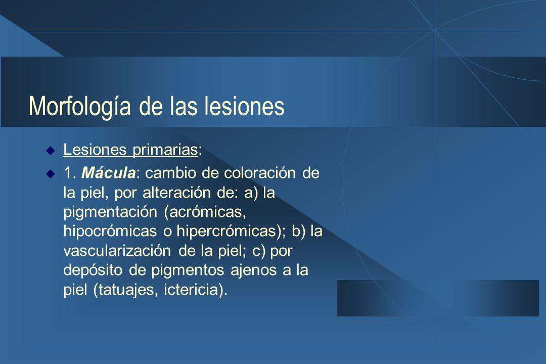 Morfología de las lesiones  Lesiones primarias:  1.