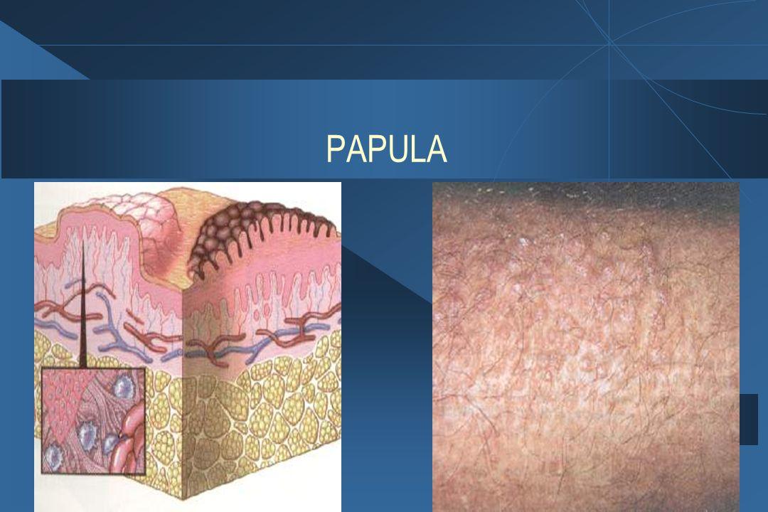 PAPULA