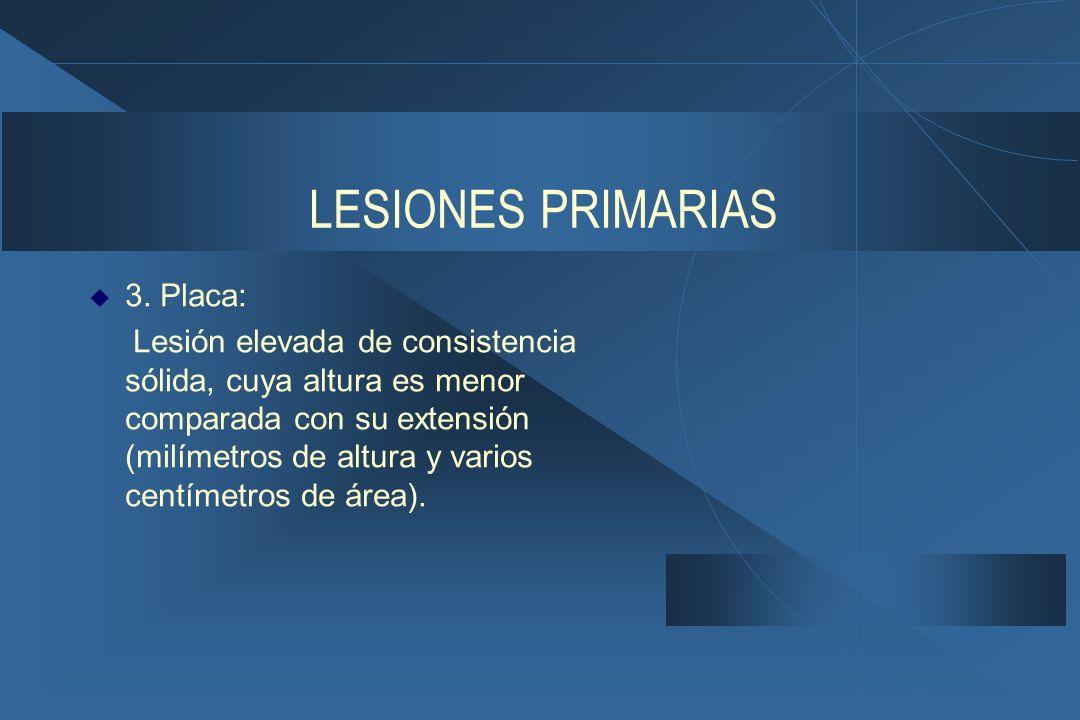 LESIONES PRIMARIAS  3.