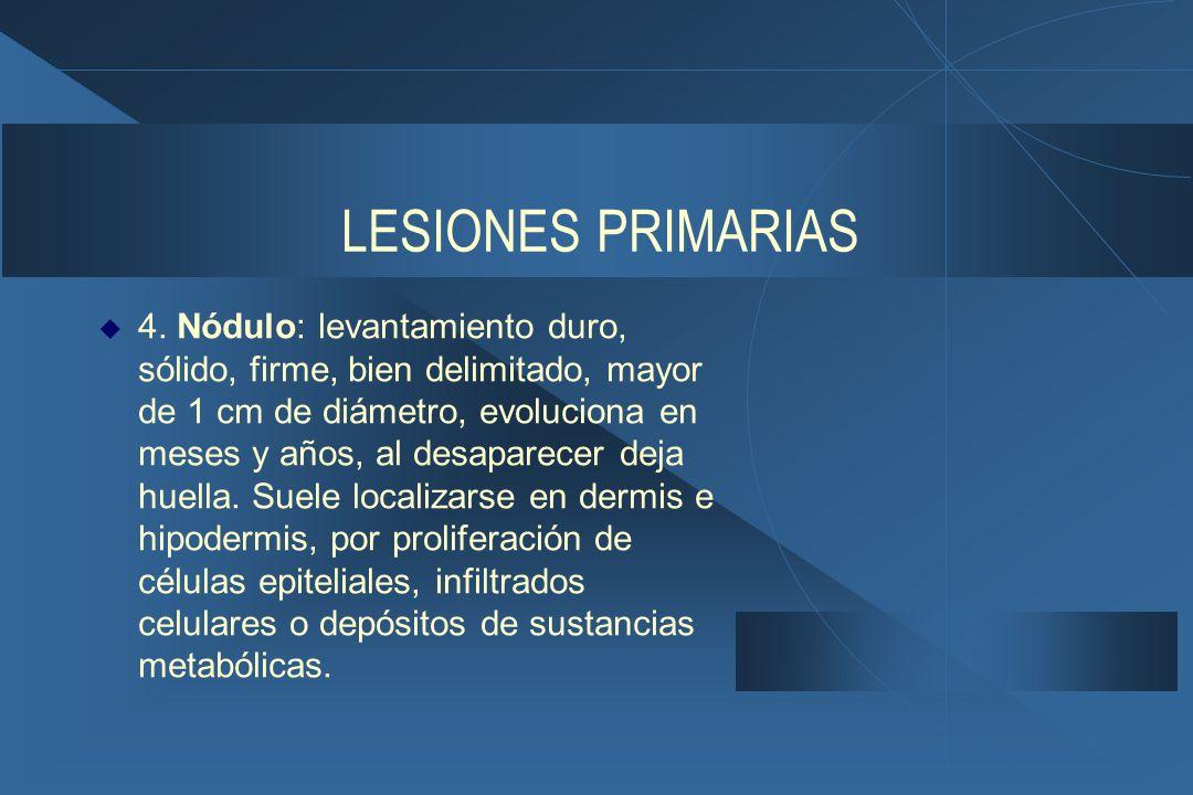 LESIONES PRIMARIAS  4.
