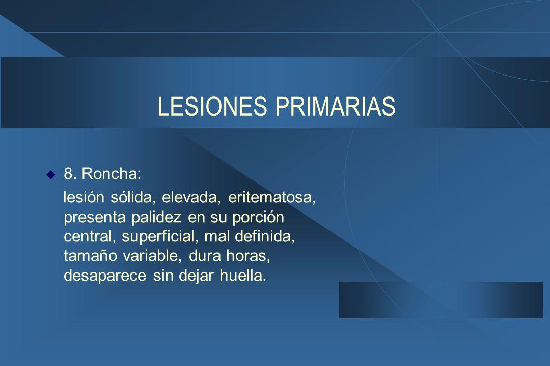 LESIONES PRIMARIAS  8.