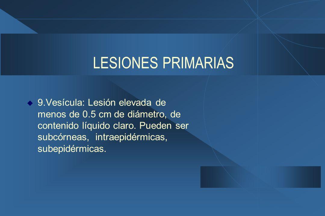 LESIONES PRIMARIAS  9.Vesícula: Lesión elevada de menos de 0.5 cm de diámetro, de contenido líquido claro.