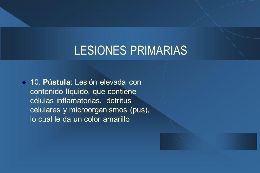 LESIONES PRIMARIAS  10.