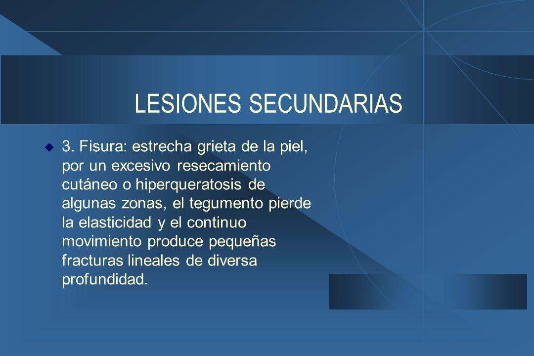 LESIONES SECUNDARIAS  3.