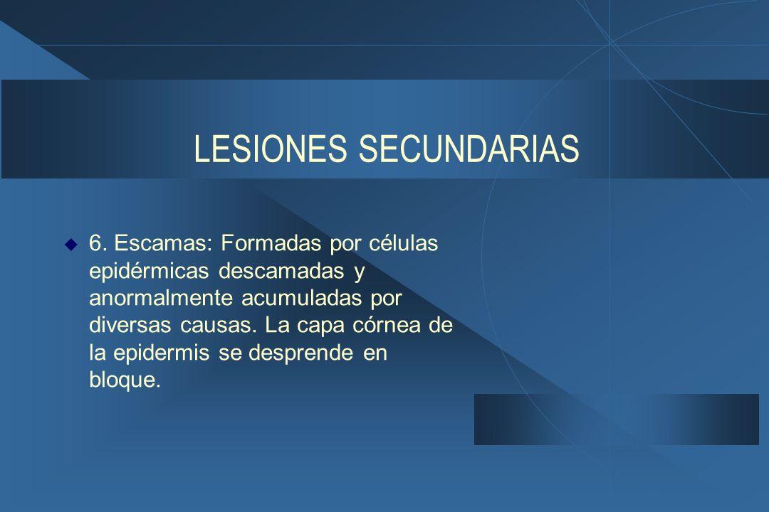 LESIONES SECUNDARIAS  6.