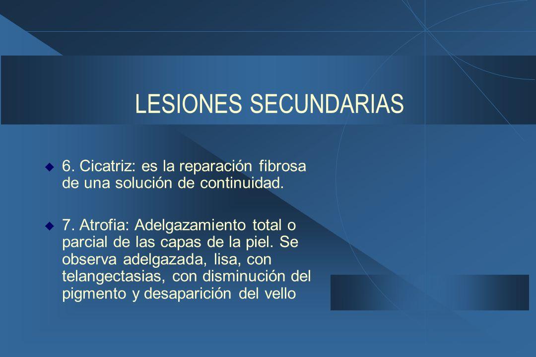 LESIONES SECUNDARIAS  6.Cicatriz: es la reparación fibrosa de una solución de continuidad.