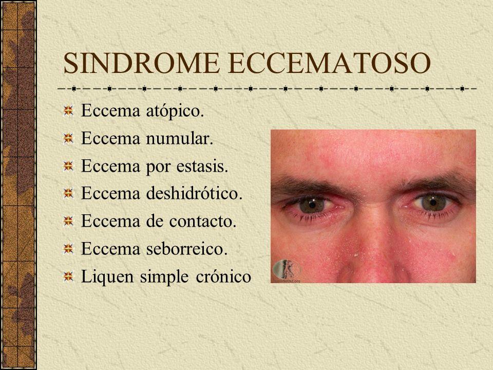 SINDROME ECCEMATOSO Eccema atópico. Eccema numular. Eccema por estasis. Eccema deshidrótico. Eccema de contacto. Eccema seborreico. Liquen simple crón