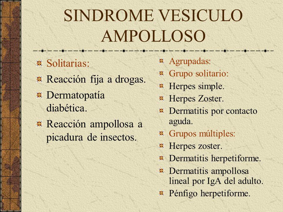 SINDROME VESICULO AMPOLLOSO Solitarias: Reacción fija a drogas. Dermatopatía diabética. Reacción ampollosa a picadura de insectos. Agrupadas: Grupo so
