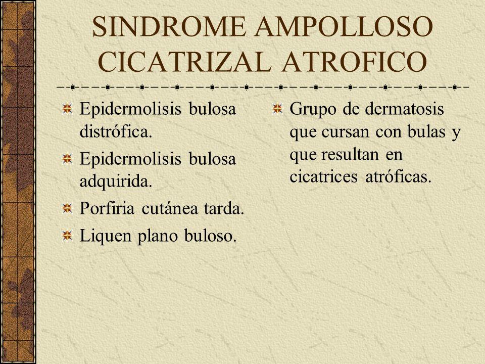 SINDROME AMPOLLOSO CICATRIZAL ATROFICO Epidermolisis bulosa distrófica. Epidermolisis bulosa adquirida. Porfiria cutánea tarda. Liquen plano buloso. G