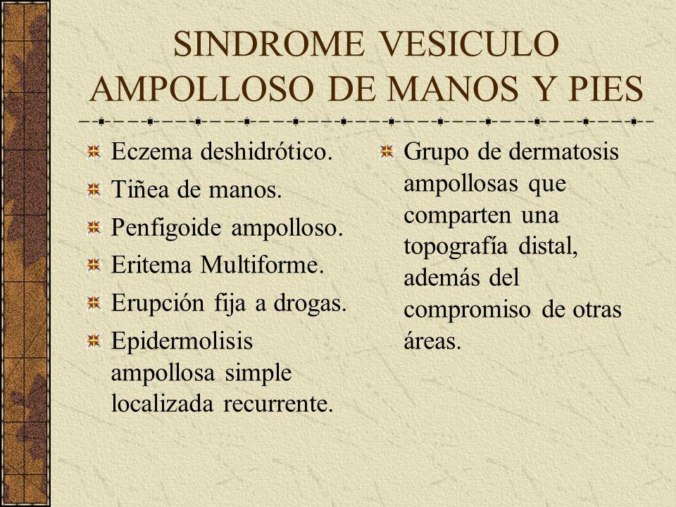 SINDROME VESICULO AMPOLLOSO DE MANOS Y PIES Eczema deshidrótico. Tiñea de manos. Penfigoide ampolloso. Eritema Multiforme. Erupción fija a drogas. Epi