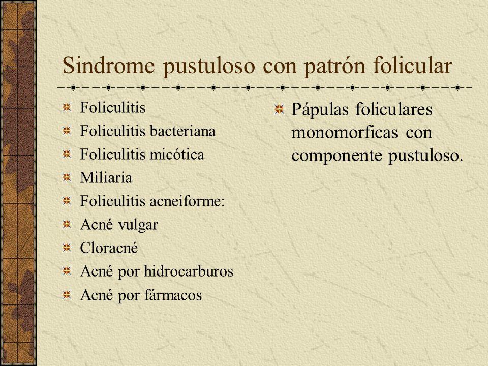 Sindrome pustuloso con patrón folicular Foliculitis Foliculitis bacteriana Foliculitis micótica Miliaria Foliculitis acneiforme: Acné vulgar Cloracné