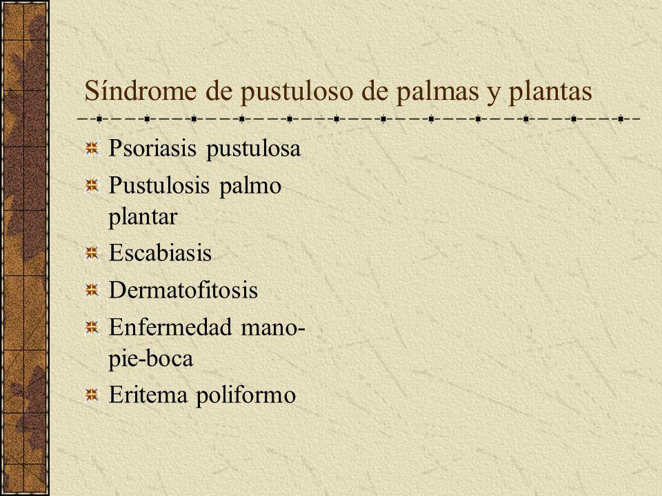 Síndrome de pustuloso de palmas y plantas Psoriasis pustulosa Pustulosis palmo plantar Escabiasis Dermatofitosis Enfermedad mano- pie-boca Eritema pol