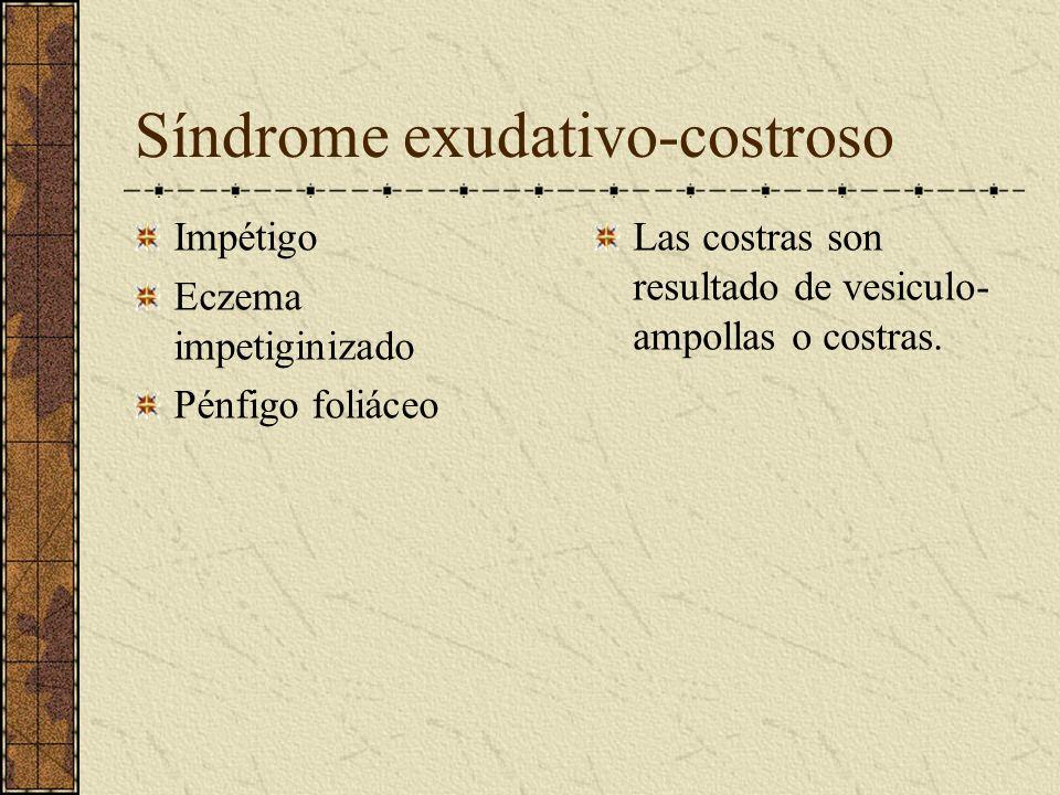 Síndrome exudativo-costroso Impétigo Eczema impetiginizado Pénfigo foliáceo Las costras son resultado de vesiculo- ampollas o costras.