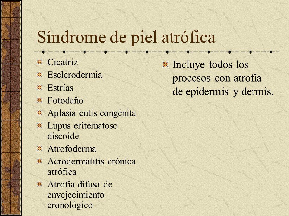 Síndrome de piel atrófica Cicatriz Esclerodermia Estrías Fotodaño Aplasia cutis congénita Lupus eritematoso discoide Atrofoderma Acrodermatitis crónic