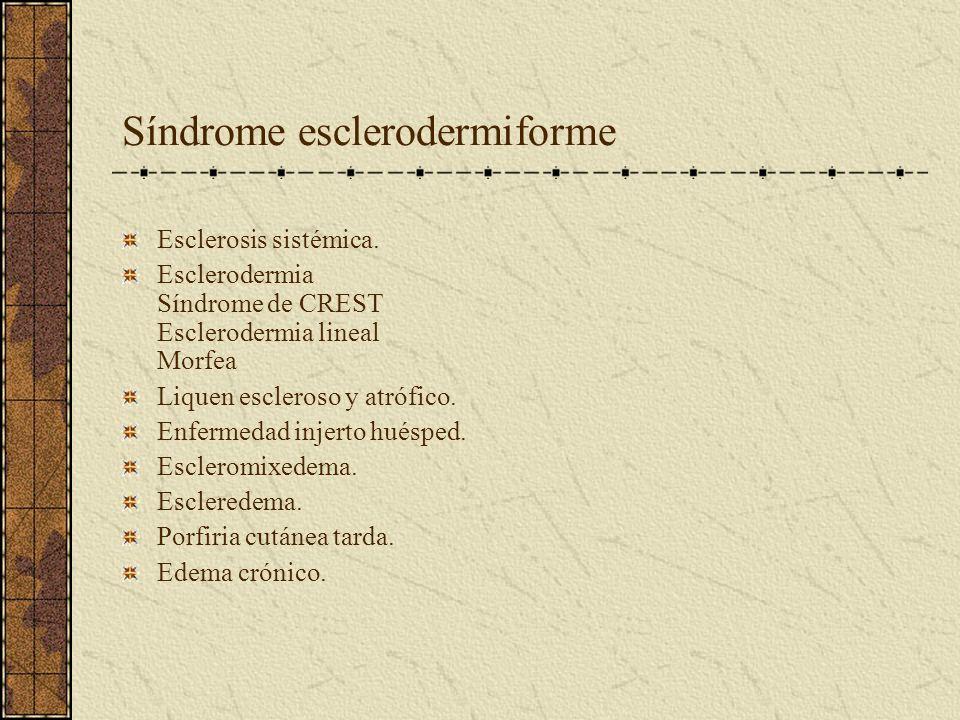 Síndrome esclerodermiforme Esclerosis sistémica. Esclerodermia Síndrome de CREST Esclerodermia lineal Morfea Liquen escleroso y atrófico. Enfermedad i