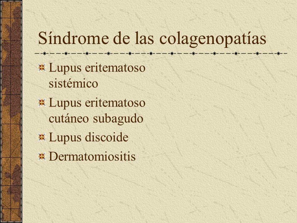 Síndrome de las colagenopatías Lupus eritematoso sistémico Lupus eritematoso cutáneo subagudo Lupus discoide Dermatomiositis