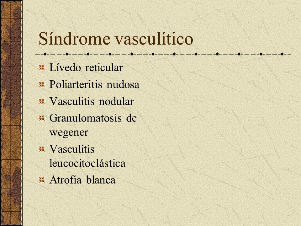 Síndrome vasculítico Lívedo reticular Poliarteritis nudosa Vasculitis nodular Granulomatosis de wegener Vasculitis leucocitoclástica Atrofia blanca