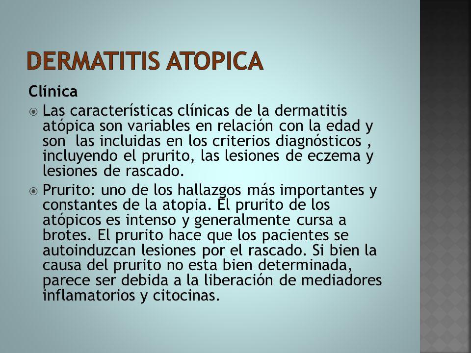 Clínica  Las características clínicas de la dermatitis atópica son variables en relación con la edad y son las incluidas en los criterios diagnóstico