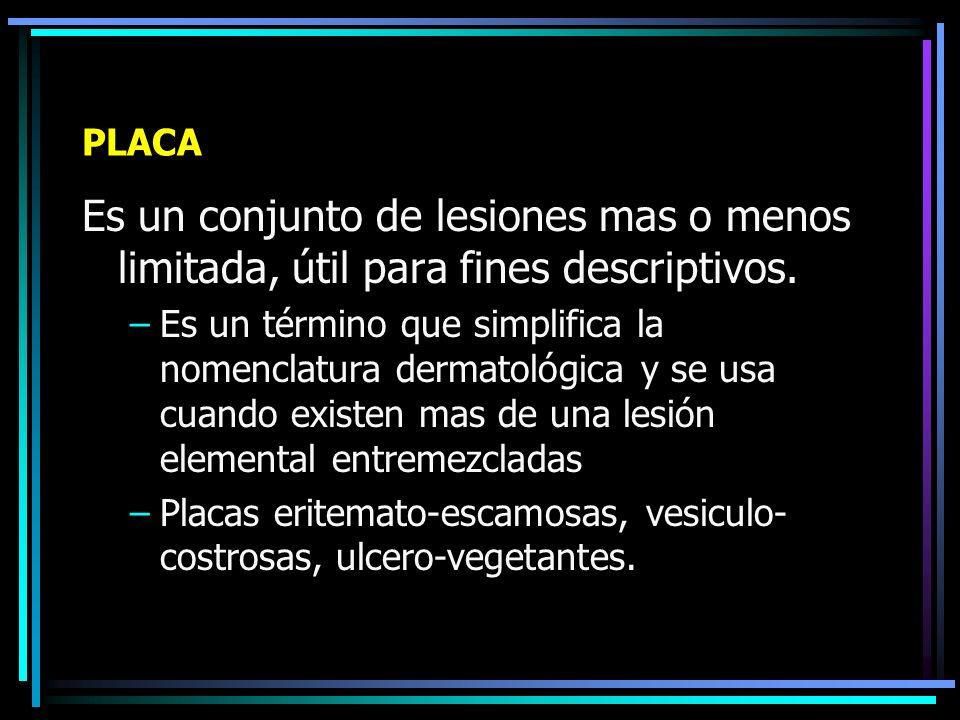 LESIONES ELEMENTALES ASOCIADAS Se usa el término cuando en una misma zona coexisten mas de una lesión elemental, y ellas son: –Placa –Eczema Agudo Subagudo Crónico