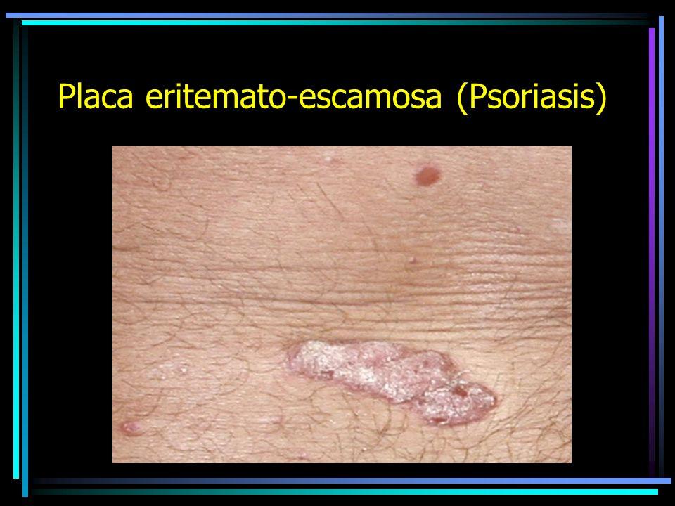 PLACA Es un conjunto de lesiones mas o menos limitada, útil para fines descriptivos.