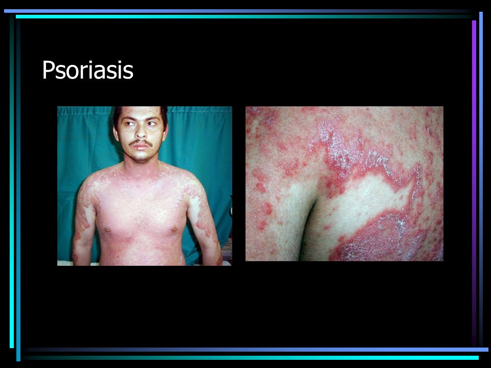 Placa eritemato-escamosa (Psoriasis)