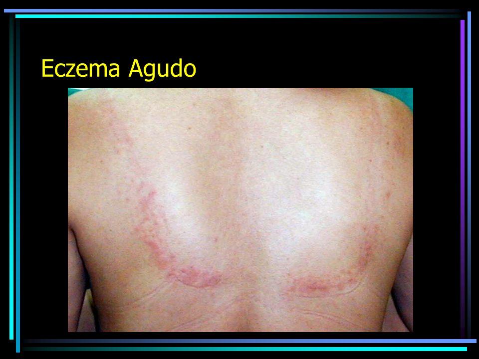 Eczema Agudo
