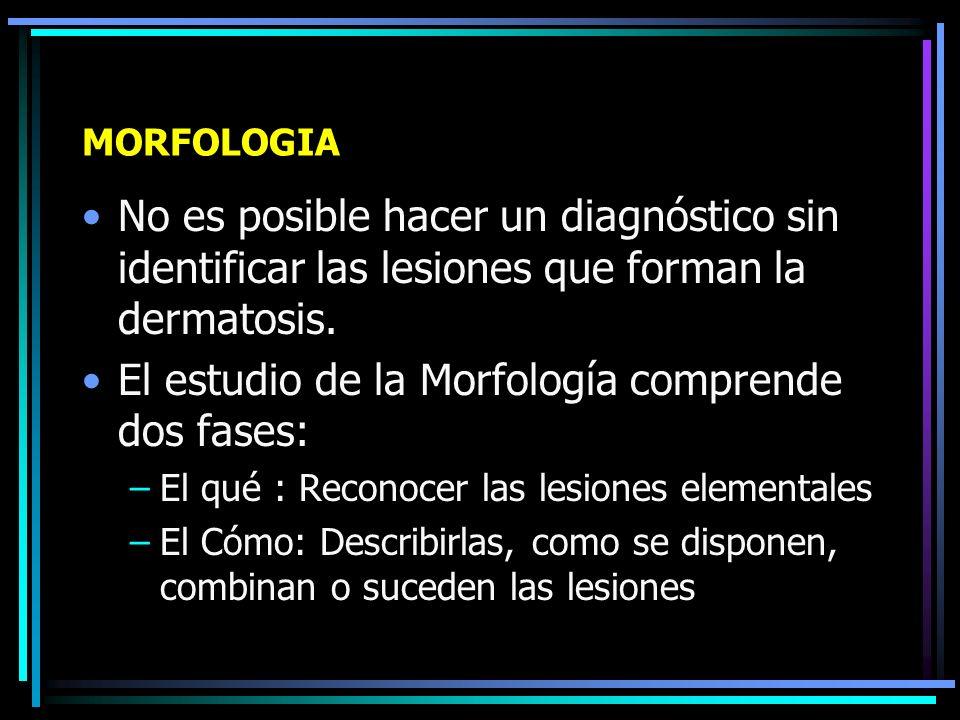 TOPOGRAFIA Simétrica o asimétrica Areas expuestas o cubiertas Partes entrantes o salientes Topografía especial: LED, Escabiasis Sitios respetados en D.