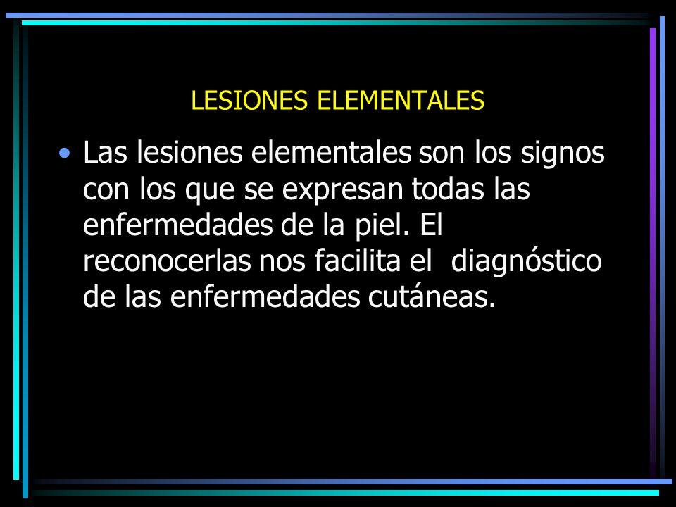 MORFOLOGIA Lesiones únicas o múltiples Aisladas o confluentes Tamaño: Medirlas con regla o cinta Forma de las lesiones: Policíclica, anular, circinada, cartográfica, zoniforme, etc.