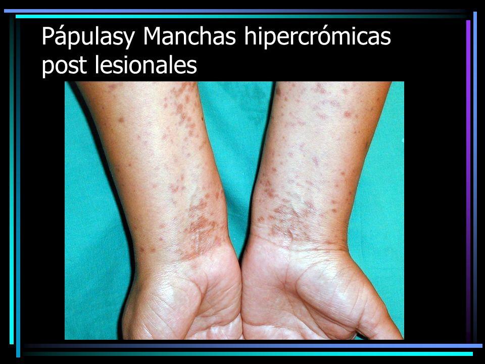 CLASIFICACION DE LAS MANCHAS Pigmentarias –Hipercrómicas: Melasma –Hipocrómicas: P.