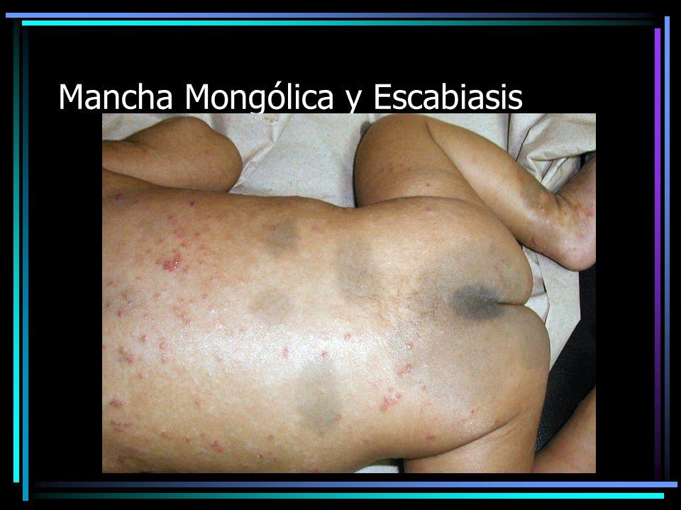 Pápulasy Manchas hipercrómicas post lesionales