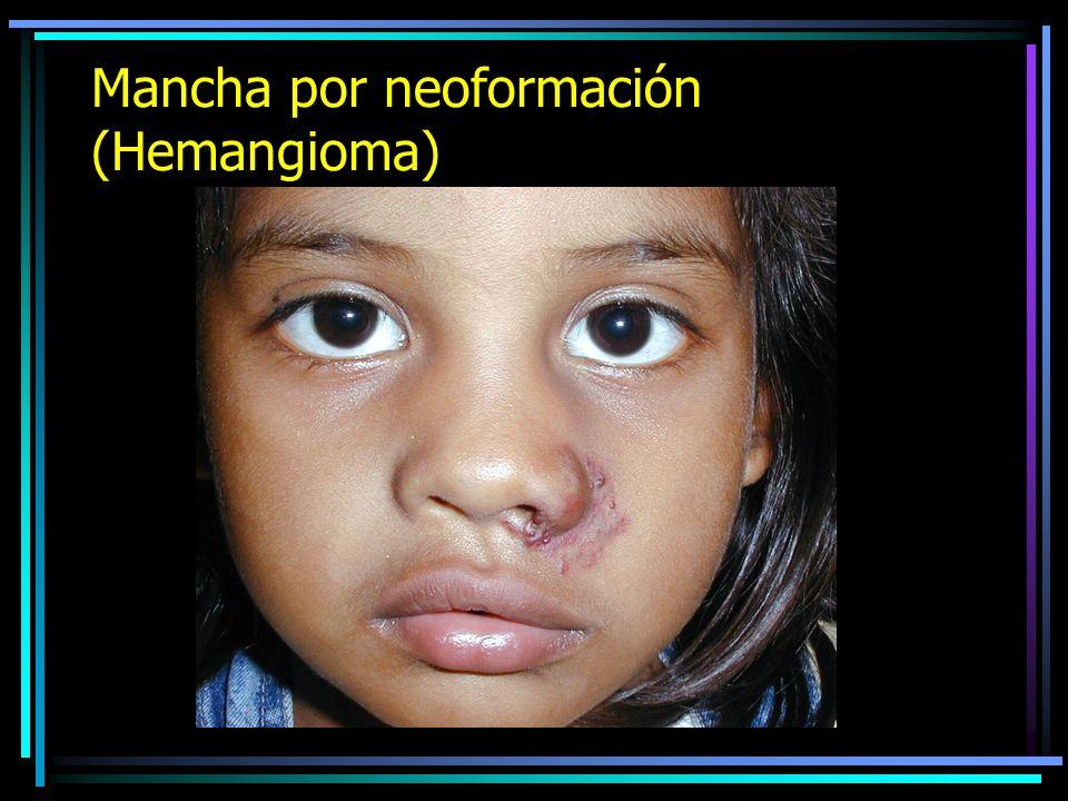 Mancha por neoformación (Hemangioma)