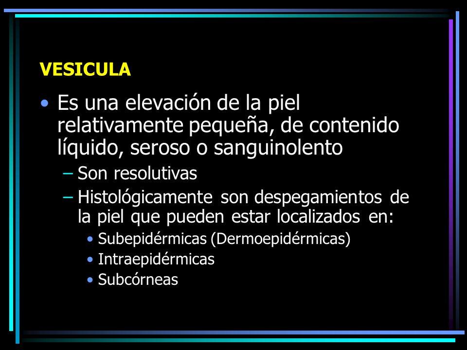 LESIONES DE CONTENIDO LIQUIDO Vesícula Ampolla, flictena o bula Pústula