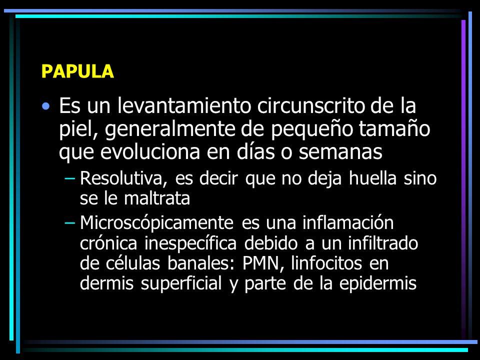 LESIONES DE CONTENIDO SOLIDO Pápula Nódulo Nudosidad