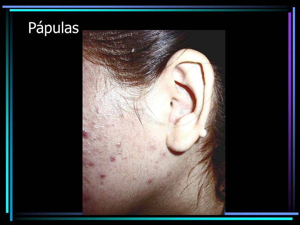PAPULA Es un levantamiento circunscrito de la piel, generalmente de pequeño tamaño que evoluciona en días o semanas –Resolutiva, es decir que no deja huella sino se le maltrata –Microscópicamente es una inflamación crónica inespecífica debido a un infiltrado de células banales: PMN, linfocitos en dermis superficial y parte de la epidermis