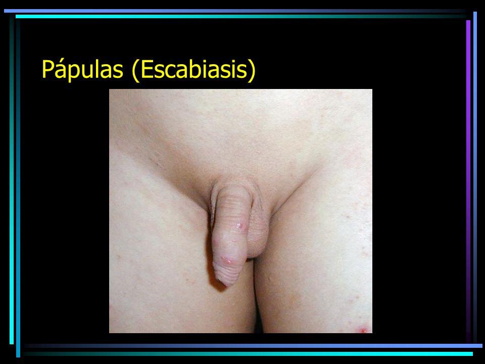 Pápulas (Escabiasis)