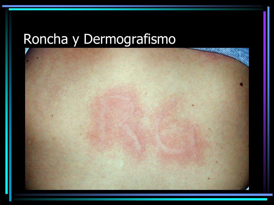 Roncha y Dermografismo