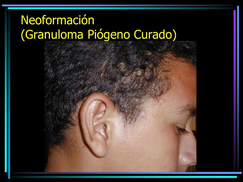 Neoformación (Granuloma Piógeno)