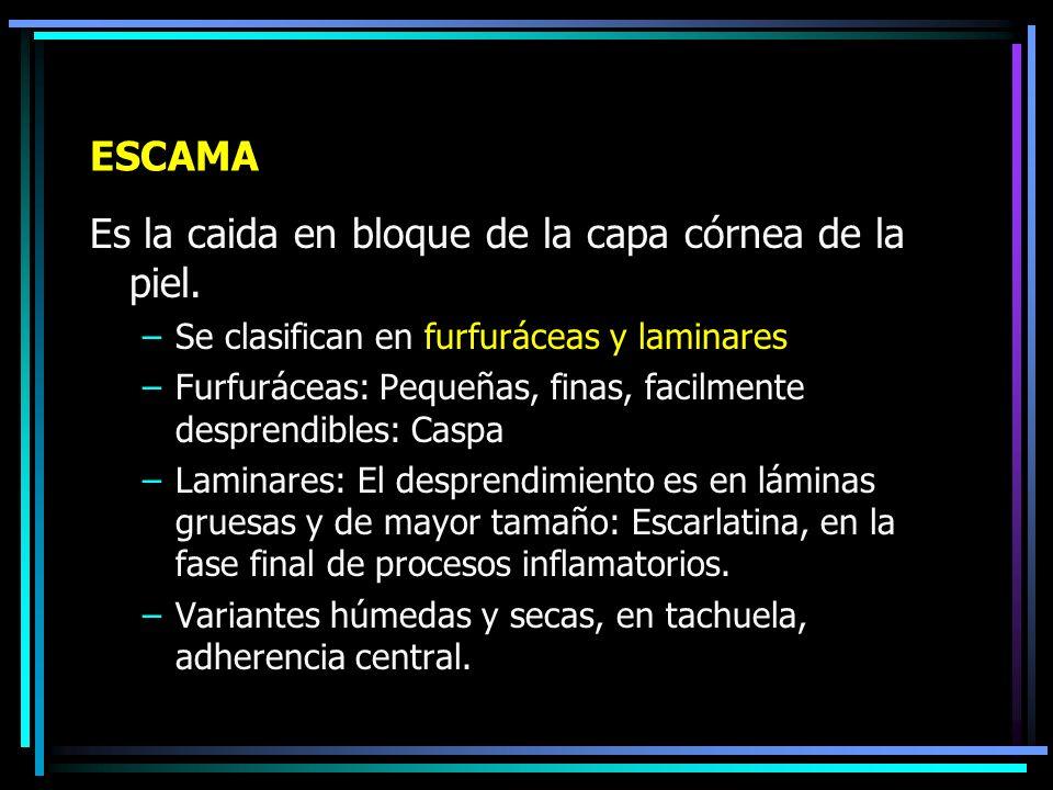 Fibroma
