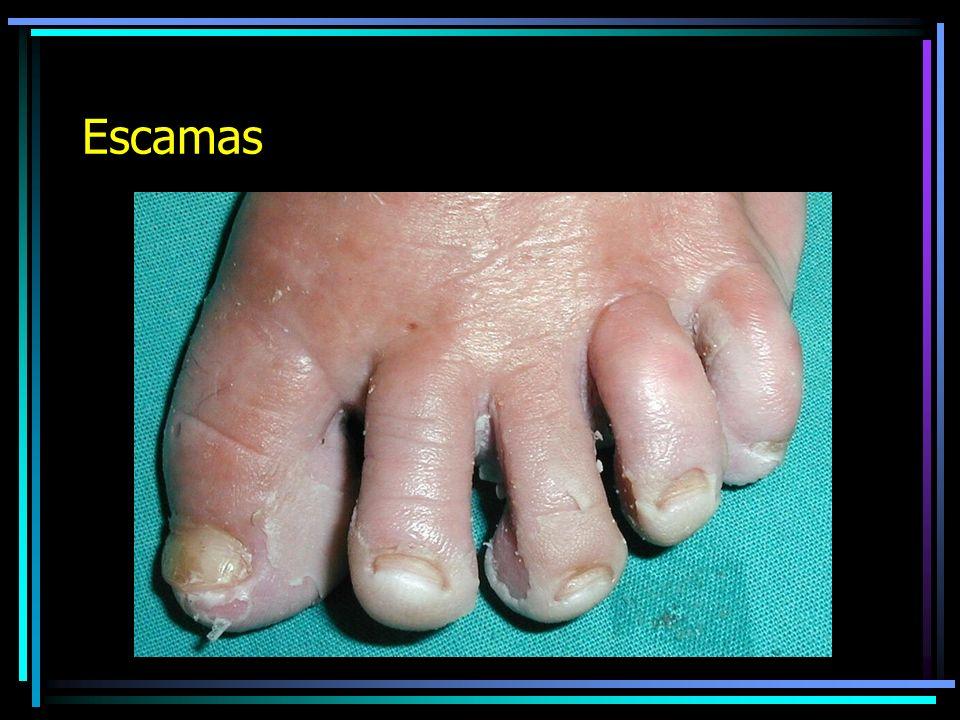 ESCAMA Es la caida en bloque de la capa córnea de la piel.