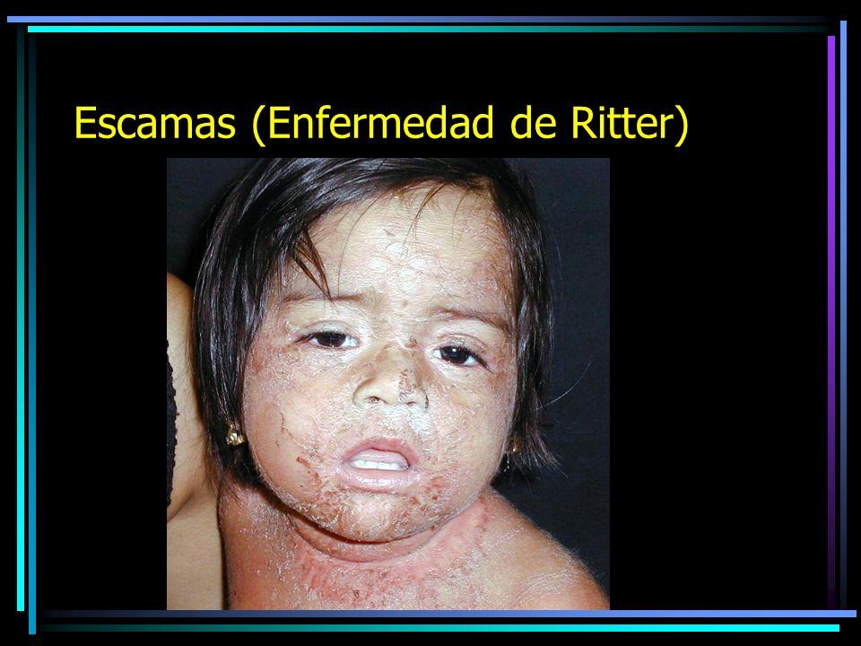 Escamas (Dermatitis Seborréica)