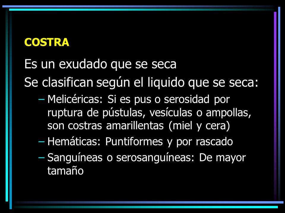 Escamas (Ictiosis)