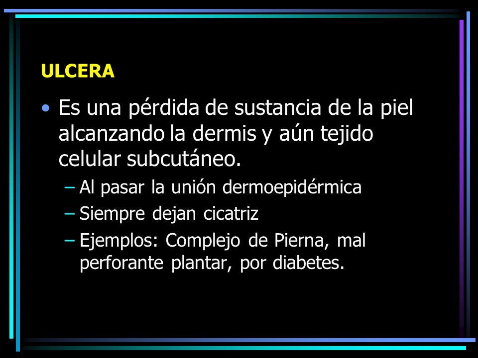 ULCERACION Es una perdida de sustancia de la piel muy superficial que solo afecta la epidermis.