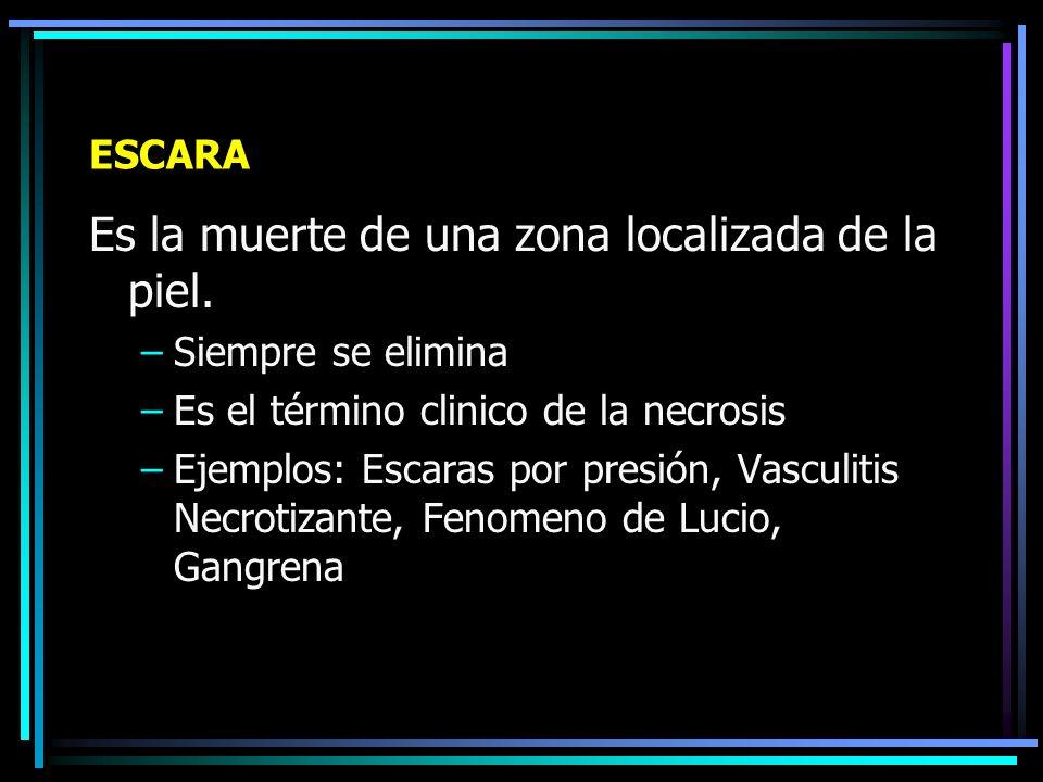 Ulcera (Complejo de Pierna)
