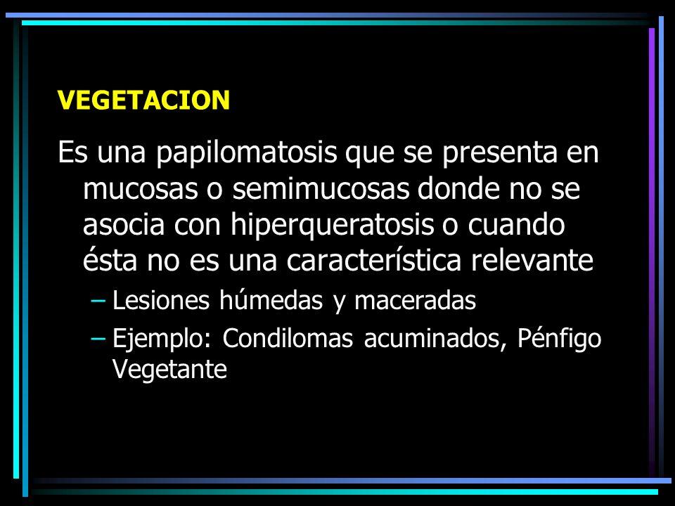 VEGETACION Y VERRUCOSIDAD Es la combinación de una hiperqueratosis con papilomatosis que da a la piel un aspecto irregular, anfractuoso y mamelonado Papilomatosis: Proyección exofítica de las papilas de la dermis, las cuales hacen relieve en la epidermis (aspecto saliente y ondulante, papilomatoso ) Hiperqueratosis:Es el engrosamiento anormal de la capa córnea
