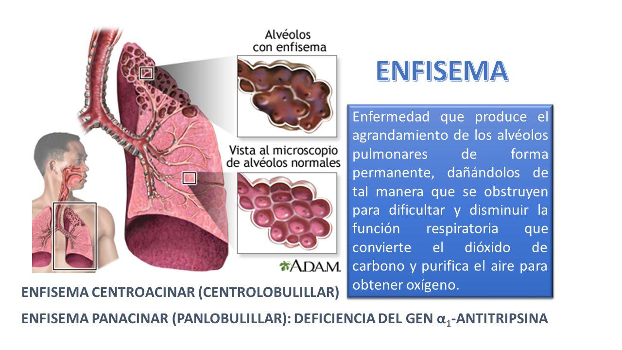 Enfermedad que produce el agrandamiento de los alvéolos pulmonares ...