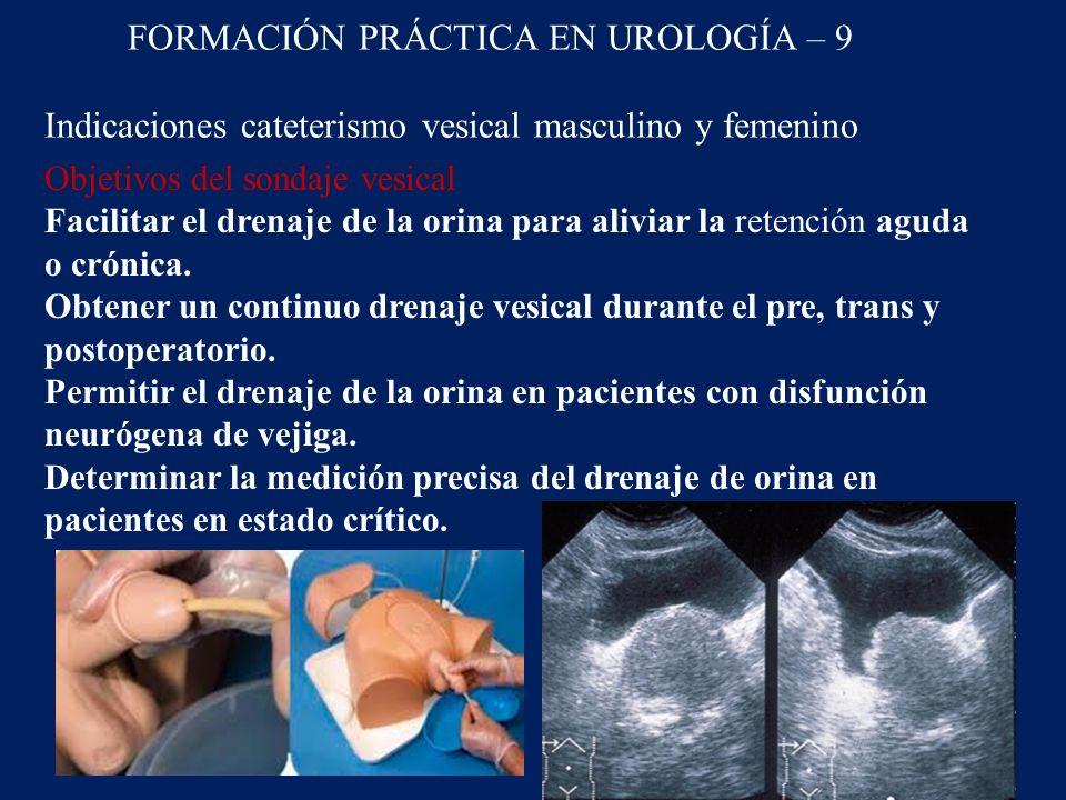 FORMACIÓN PRÁCTICA EN UROLOGÍA – 9 Indicaciones cateterismo vesical masculino y femenino Objetivos del sondaje vesical Facilitar el drenaje de la orina para aliviar la retención aguda o crónica.