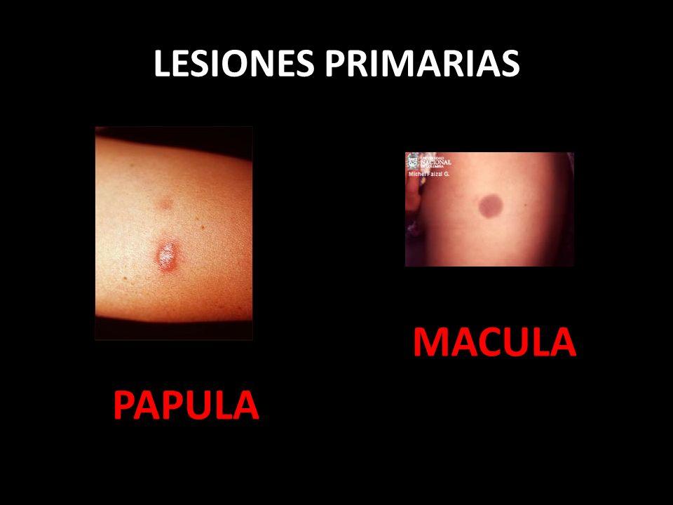 LESIONES PRIMARIAS MACULA PAPULA